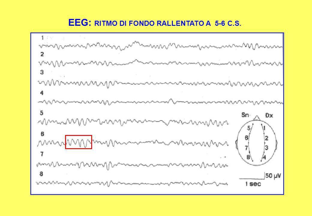 EEG: RITMO DI FONDO RALLENTATO A 5-6 C.S.