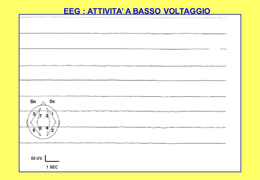 50 UV. 1 SEC EEG : ATTIVITA A BASSO VOLTAGGIO