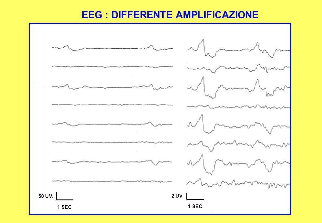 2 UV. 1 SEC 50 UV. 1 SEC EEG : DIFFERENTE AMPLIFICAZIONE