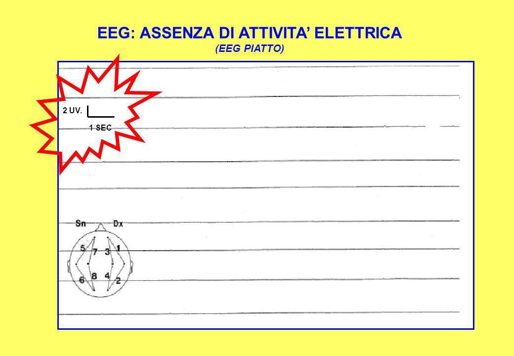 EEG: ASSENZA DI ATTIVITA ELETTRICA (EEG PIATTO) 2 UV. 1 SEC