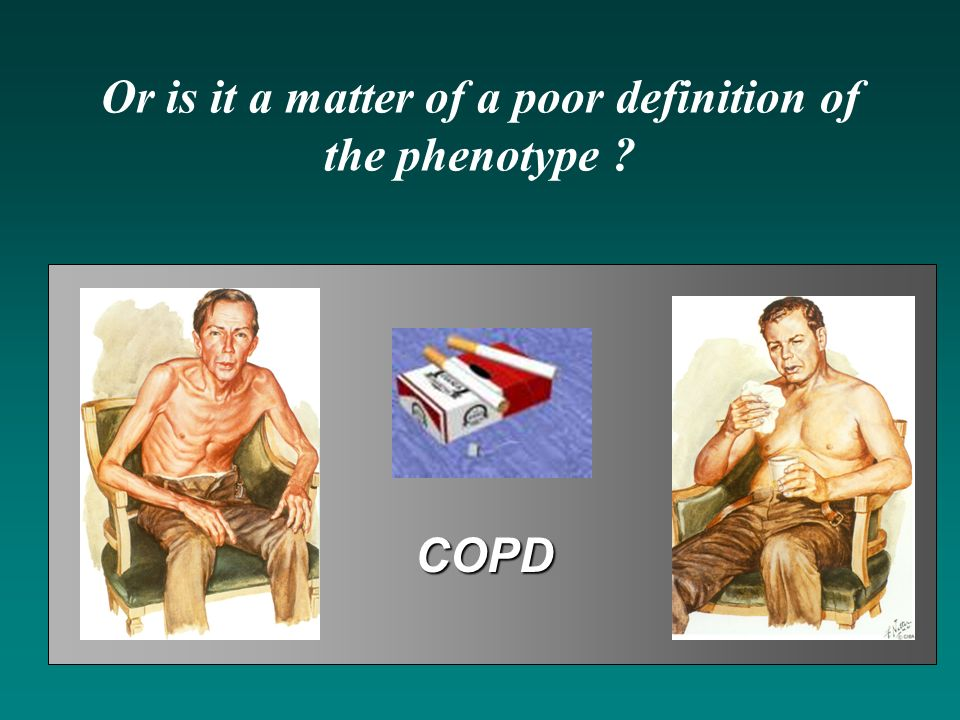 Or is it a matter of a poor definition of the phenotype ? COPD