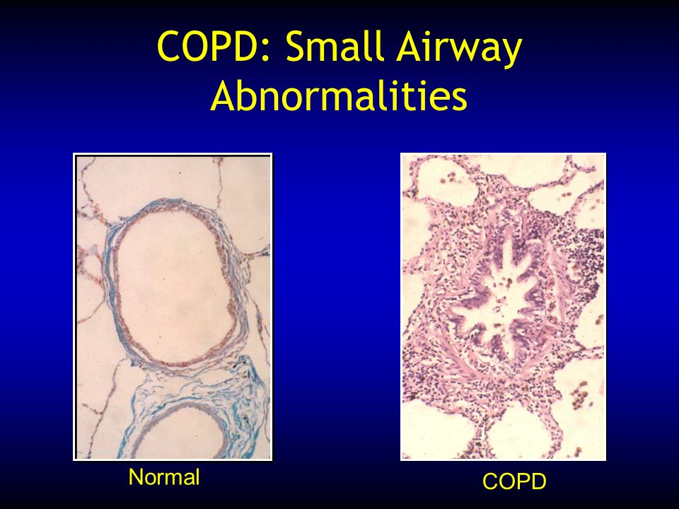 COPD: Small Airway Abnormalities Normal COPD