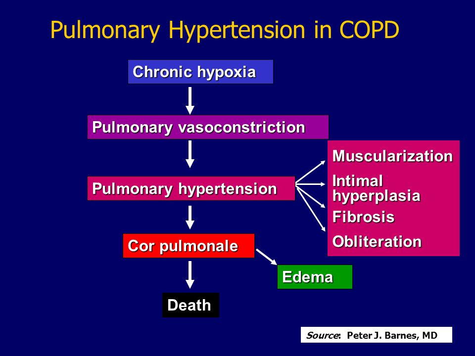 Chronic hypoxia Pulmonary vasoconstriction MuscularizationIntimalhyperplasiaFibrosisObliteration Pulmonary hypertension Cor pulmonale Death Edema Pulm