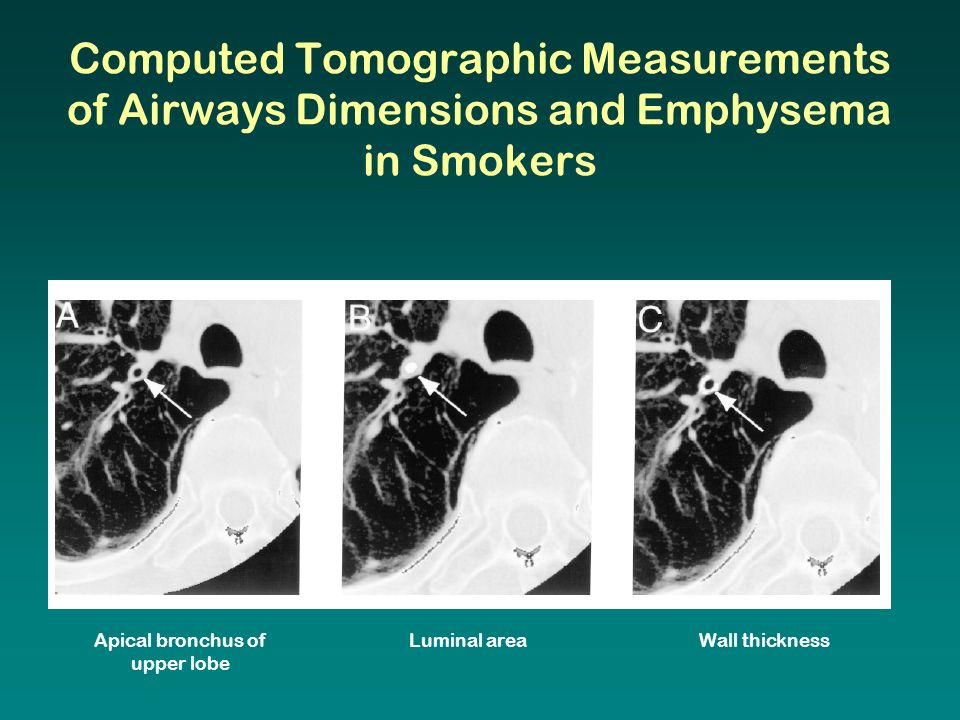 Apical bronchus of upper lobe Luminal areaWall thickness Computed Tomographic Measurements of Airways Dimensions and Emphysema in Smokers