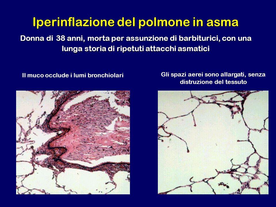 Iperinflazione del polmone in asma Donna di 38 anni, morta per assunzione di barbiturici, con una lunga storia di ripetuti attacchi asmatici Il muco o