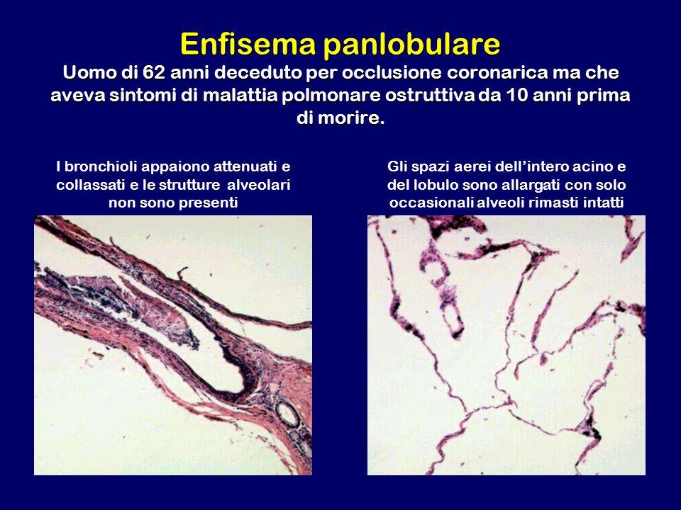 Enfisema panlobulare Uomo di 62 anni deceduto per occlusione coronarica ma che aveva sintomi di malattia polmonare ostruttiva da 10 anni prima di mori