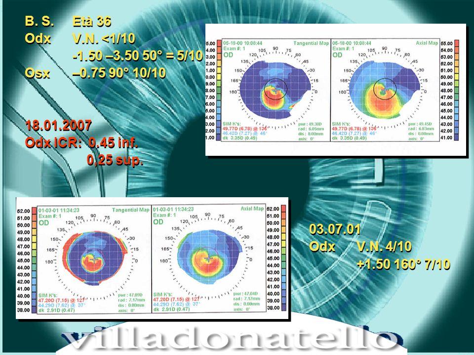 HOT TOPICS IN CHIRUGIA REFRATTIVA – LIFE CRONOS 15 dicembre 2001 B. S. Età 36 Odx V.N. <1/10 -1.50 –3.50 50° = 5/10 Osx –0.75 90° 10/10 18.01.2007 Odx