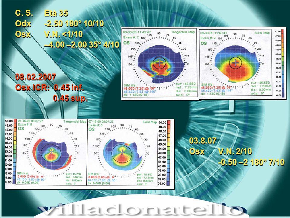 HOT TOPICS IN CHIRUGIA REFRATTIVA – LIFE CRONOS 15 dicembre 2001 C.