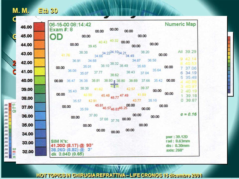 HOT TOPICS IN CHIRUGIA REFRATTIVA – LIFE CRONOS 15 dicembre 2001 M. M. Età 30 Odx V.N. <1/10 -2.00 –1.00 30° = 10/10 Osx –3.25 10/10 27.05.2000 Odx IC