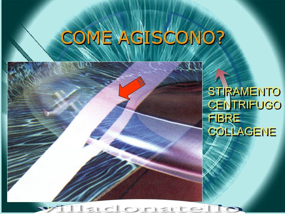HOT TOPICS IN CHIRUGIA REFRATTIVA – LIFE CRONOS 15 dicembre 2001 COME AGISCONO.