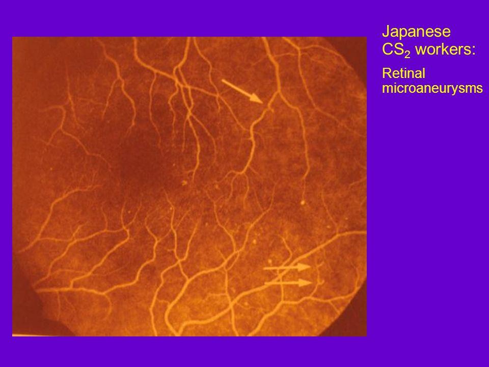 Japanese CS 2 workers: Retinal microaneurysms
