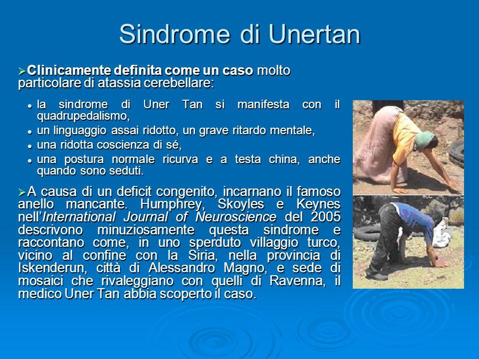 Sindrome di Unertan Clinicamente definita come un caso molto particolare di atassia cerebellare: Clinicamente definita come un caso molto particolare