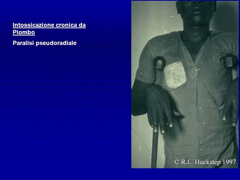 Intossicazione cronica da Piombo Paralisi pseudoradiale