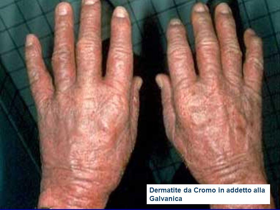 Dermatite da Cromo in addetto alla Galvanica