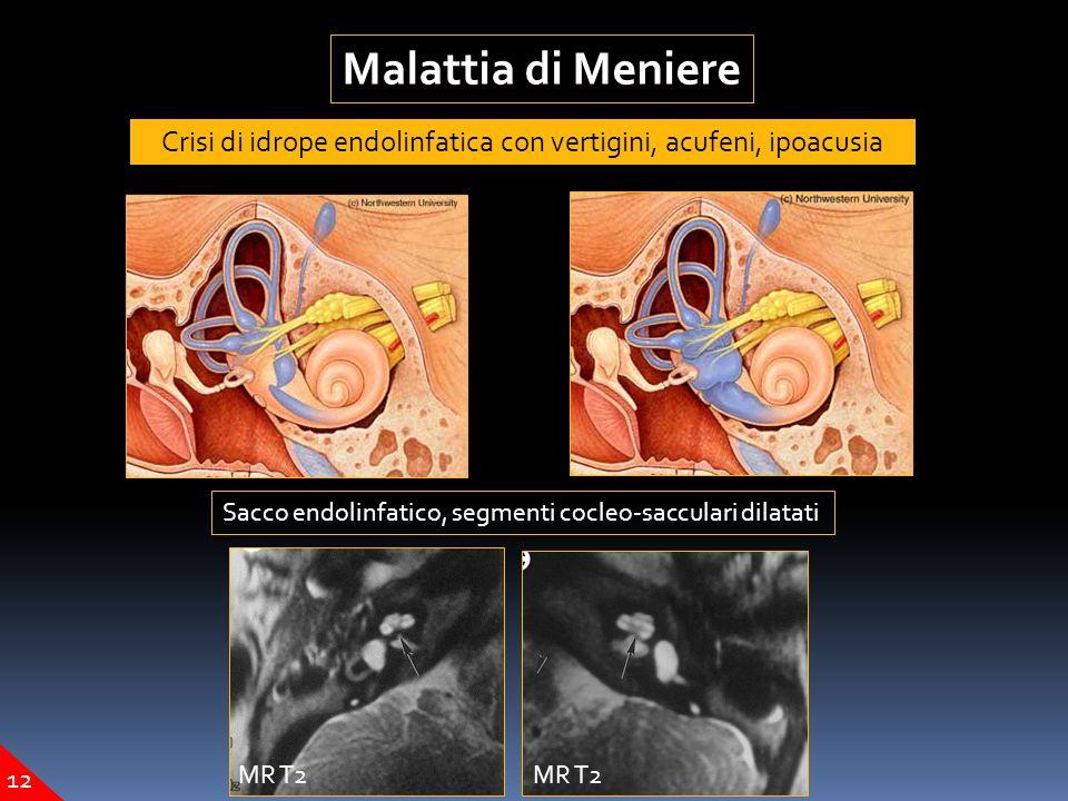Malattia di Meniere Crisi di idrope endolinfatica con vertigini, acufeni, ipoacusia Sacco endolinfatico, segmenti cocleo-sacculari dilatati MR T2 12