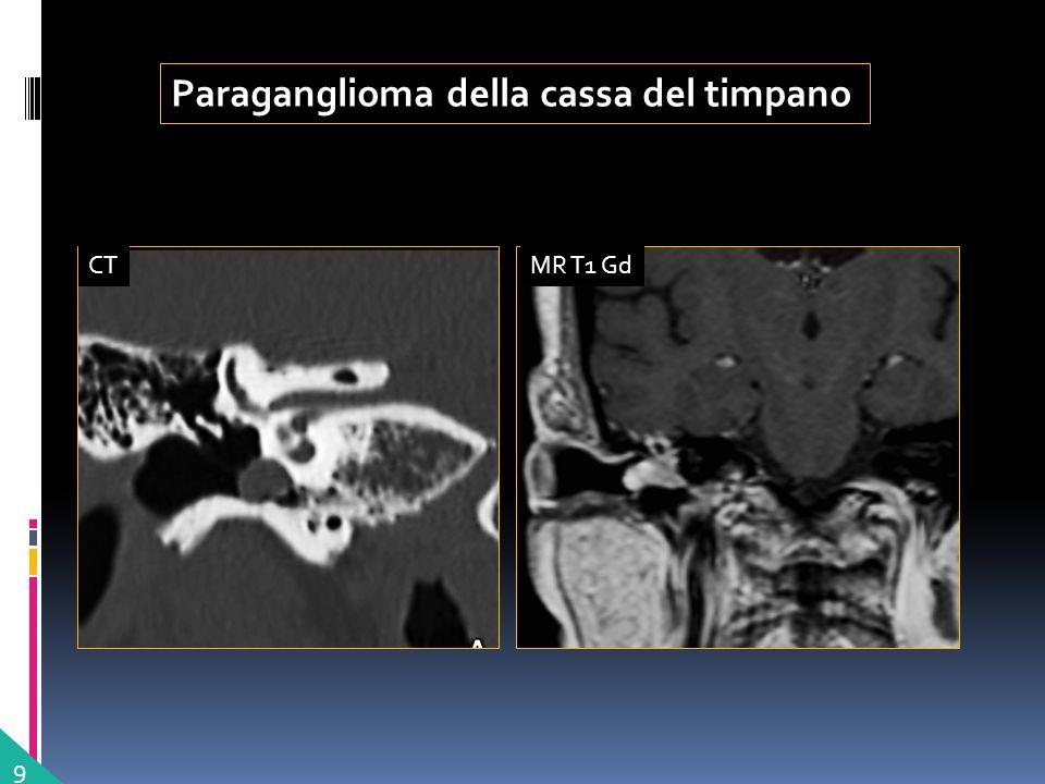 Paraganglioma della cassa del timpano 9 MR T1 GdCT