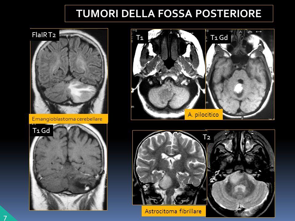 Astrocitoma fibrillare TUMORI DELLA FOSSA POSTERIORE 7 A.