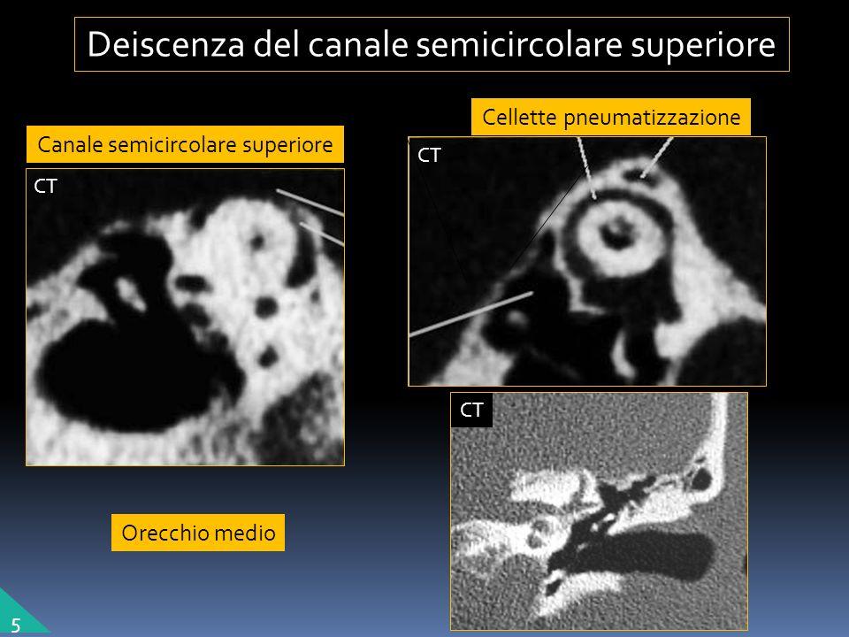 Orecchio medio Canale semicircolare superiore Cellette pneumatizzazione Deiscenza del canale semicircolare superiore 5 CT