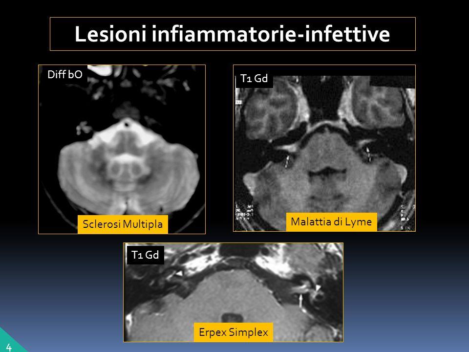 Lesioni infiammatorie-infettive Sclerosi Multipla Erpex Simplex Malattia di Lyme 4 T1 Gd Diff bO