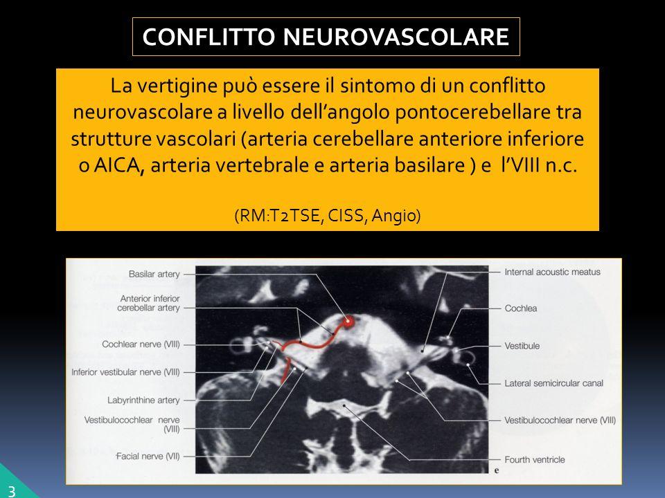 La vertigine può essere il sintomo di un conflitto neurovascolare a livello dellangolo pontocerebellare tra strutture vascolari (arteria cerebellare anteriore inferiore o AICA, arteria vertebrale e arteria basilare ) e lVIII n.c.