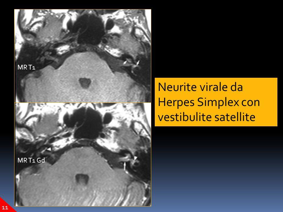 Neurite virale da Herpes Simplex con vestibulite satellite MR T1 MR T1 Gd 11