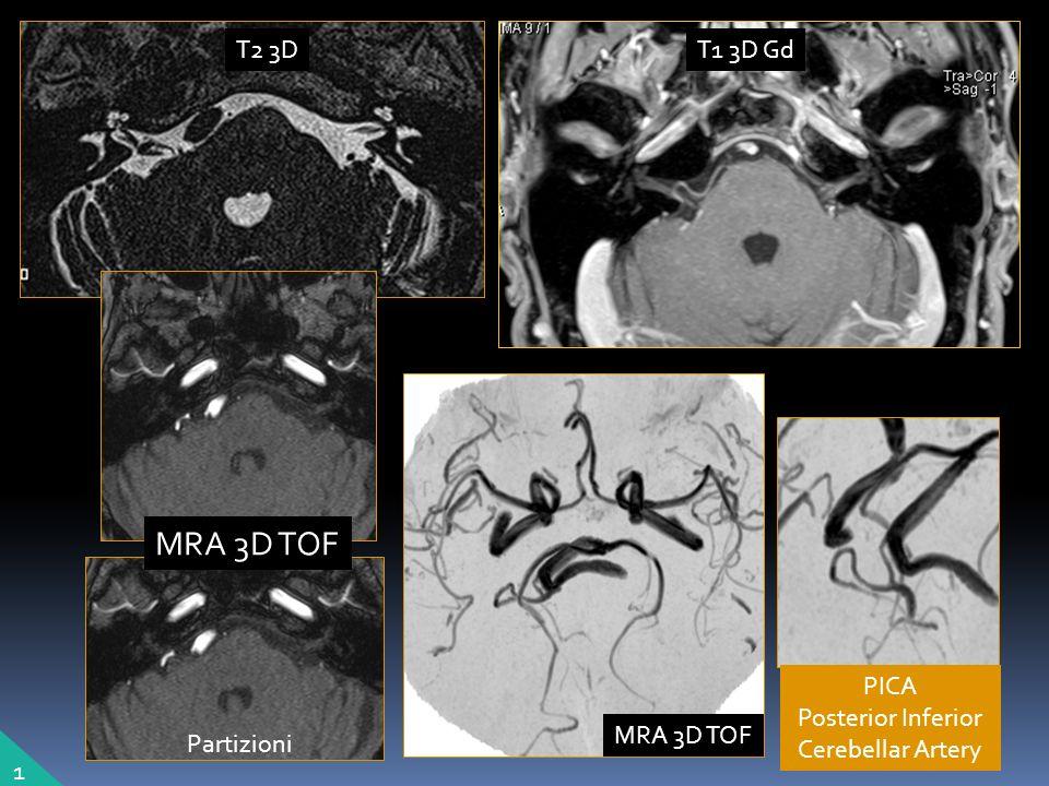 PICA Posterior Inferior Cerebellar Artery 1 T2 3DT1 3D Gd MRA 3D TOF Partizioni