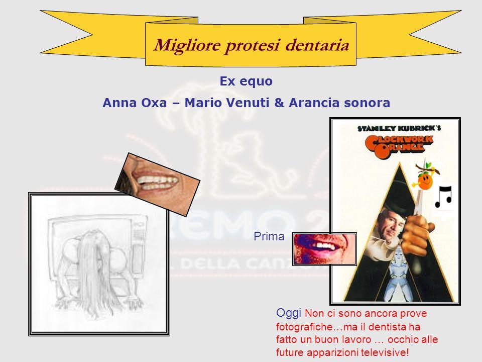 Migliore protesi dentaria Ex equo Anna Oxa – Mario Venuti & Arancia sonora Prima Oggi Non ci sono ancora prove fotografiche…ma il dentista ha fatto un buon lavoro … occhio alle future apparizioni televisive!