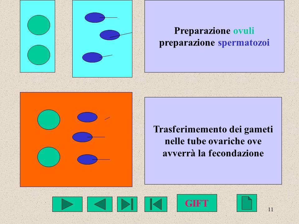 11 Preparazione ovuli preparazione spermatozoi Trasferimemento dei gameti nelle tube ovariche ove avverrà la fecondazione GIFT