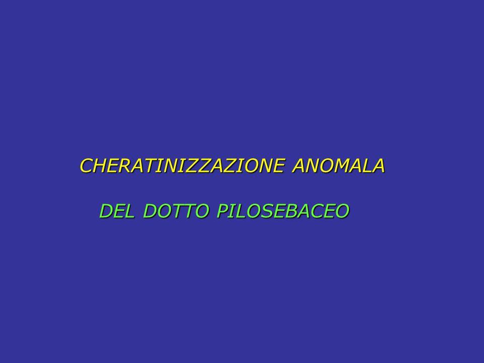 CHERATINIZZAZIONE ANOMALA DEL DOTTO PILOSEBACEO DEL DOTTO PILOSEBACEO