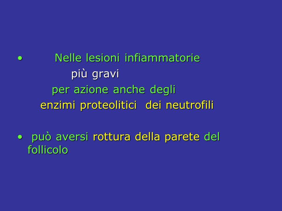 Nelle lesioni infiammatorie Nelle lesioni infiammatorie più gravi più gravi per azione anche degli per azione anche degli enzimi proteolitici dei neutrofili enzimi proteolitici dei neutrofili può aversi rottura della parete del follicolo può aversi rottura della parete del follicolo