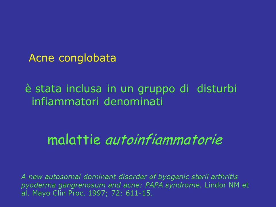 Acne conglobata è stata inclusa in un gruppo di disturbi infiammatori denominati A new autosomal dominant disorder of byogenic steril arthritis pyoderma gangrenosum and acne: PAPA syndrome.
