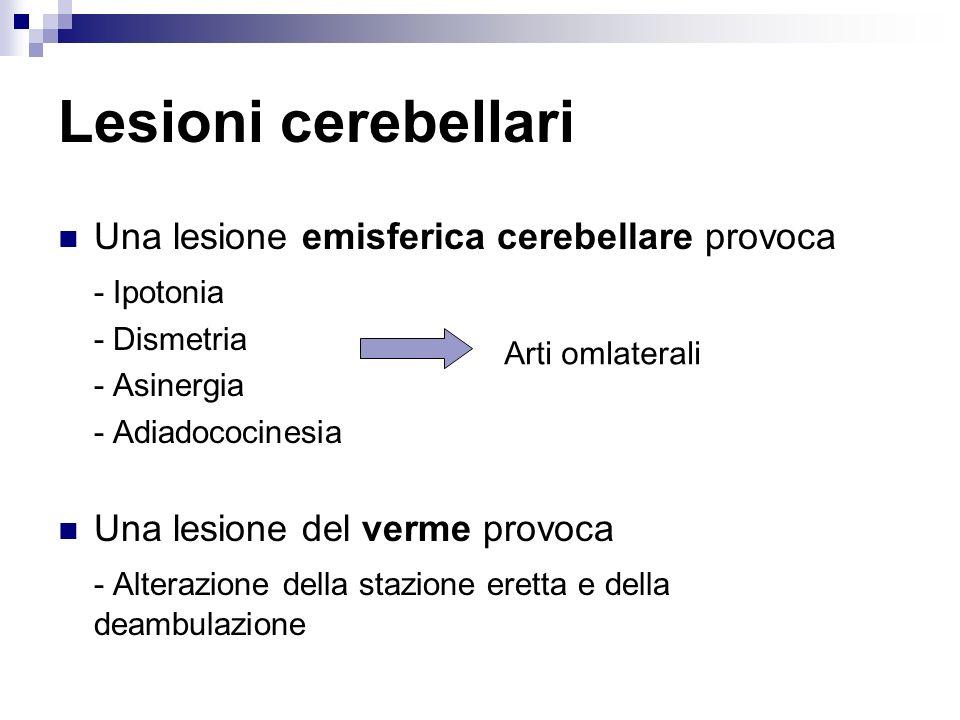 Lesioni cerebellari Una lesione emisferica cerebellare provoca - Ipotonia - Dismetria - Asinergia - Adiadococinesia Una lesione del verme provoca - Al