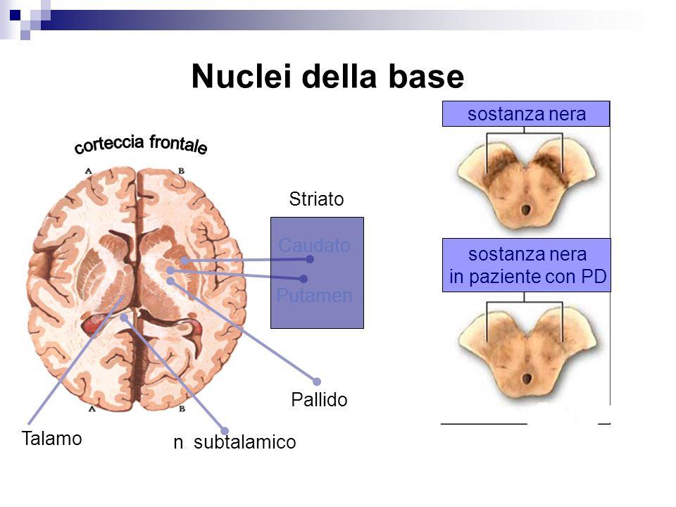 Caudato Putamen Pallido Talamo Nuclei della base sostanza nera in paziente con PD n. subtalamico Striato