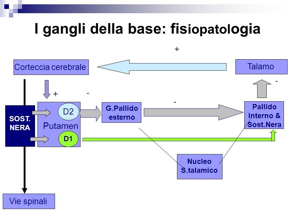 I gangli della base: fis iopatol ogia Corteccia cerebraleTalamo GLU GABA Putamen D1 D2 SOST. NERA G.Pallido esterno Nucleo S.talamico GABA Pallido Int