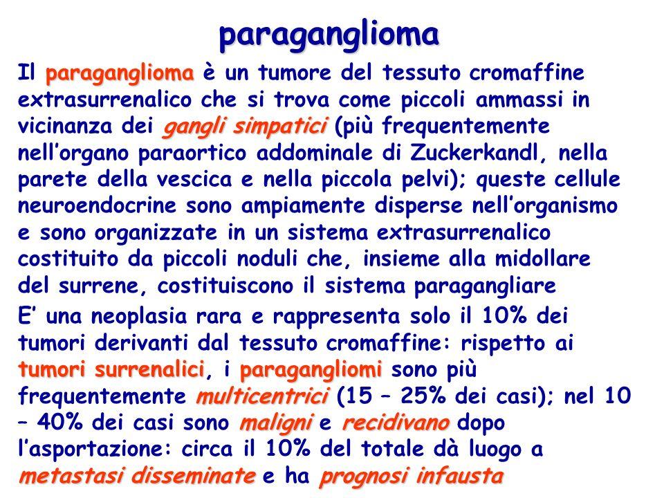 paraganglioma gangli simpatici Il paraganglioma è un tumore del tessuto cromaffine extrasurrenalico che si trova come piccoli ammassi in vicinanza dei