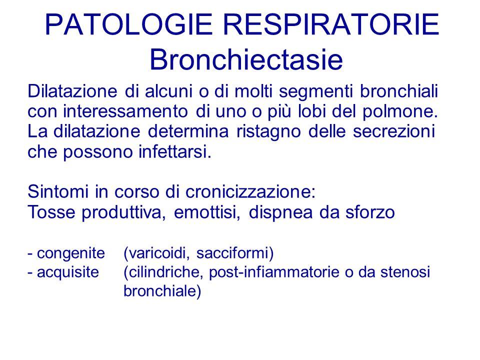 Dilatazione di alcuni o di molti segmenti bronchiali con interessamento di uno o più lobi del polmone. La dilatazione determina ristagno delle secrezi