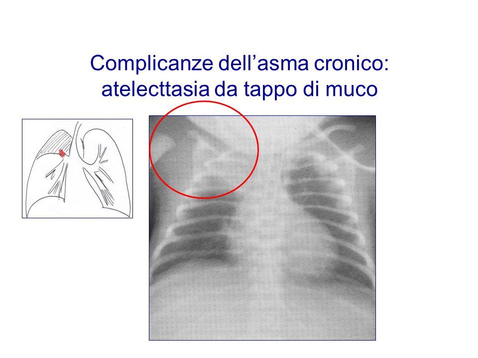 Complicanze dellasma cronico: atelecttasia da tappo di muco