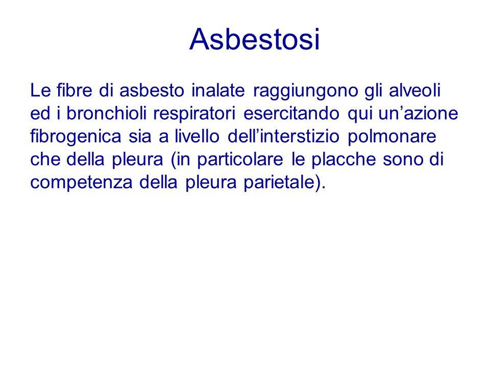 Asbestosi Le fibre di asbesto inalate raggiungono gli alveoli ed i bronchioli respiratori esercitando qui unazione fibrogenica sia a livello dellinter