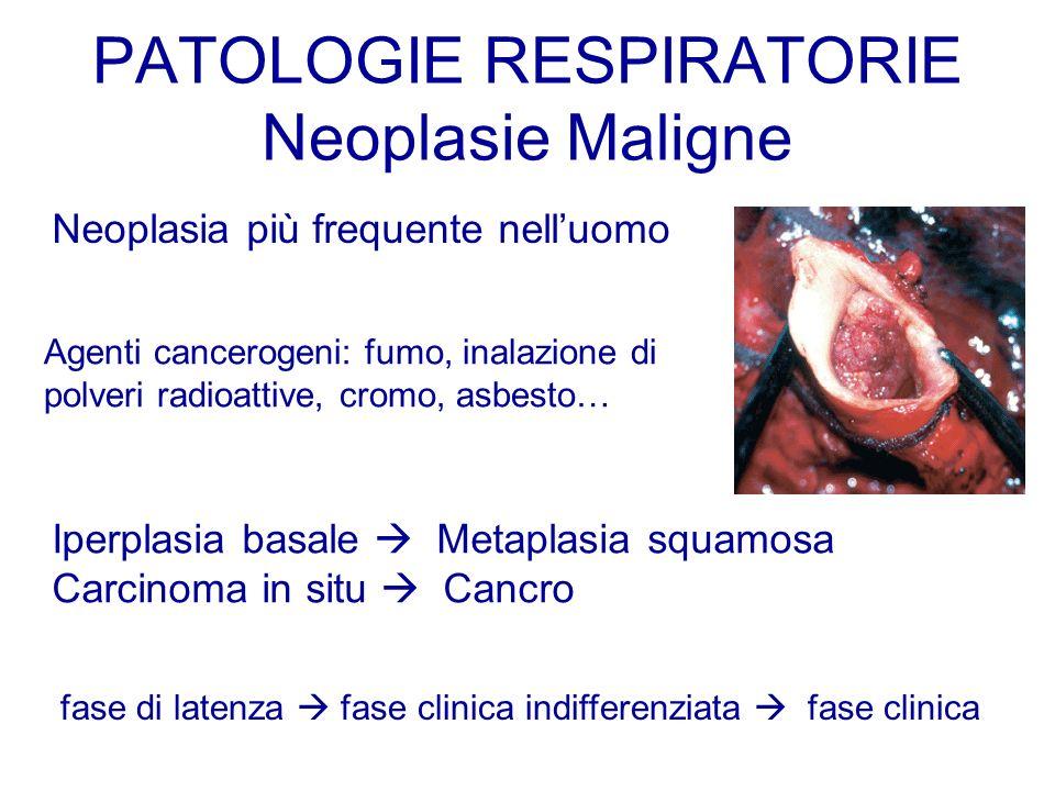 PATOLOGIE RESPIRATORIE Neoplasie Maligne Neoplasia più frequente nelluomo Agenti cancerogeni: fumo, inalazione di polveri radioattive, cromo, asbesto…
