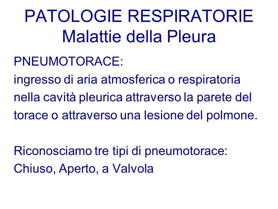 PATOLOGIE RESPIRATORIE Malattie della Pleura PNEUMOTORACE: ingresso di aria atmosferica o respiratoria nella cavità pleurica attraverso la parete del
