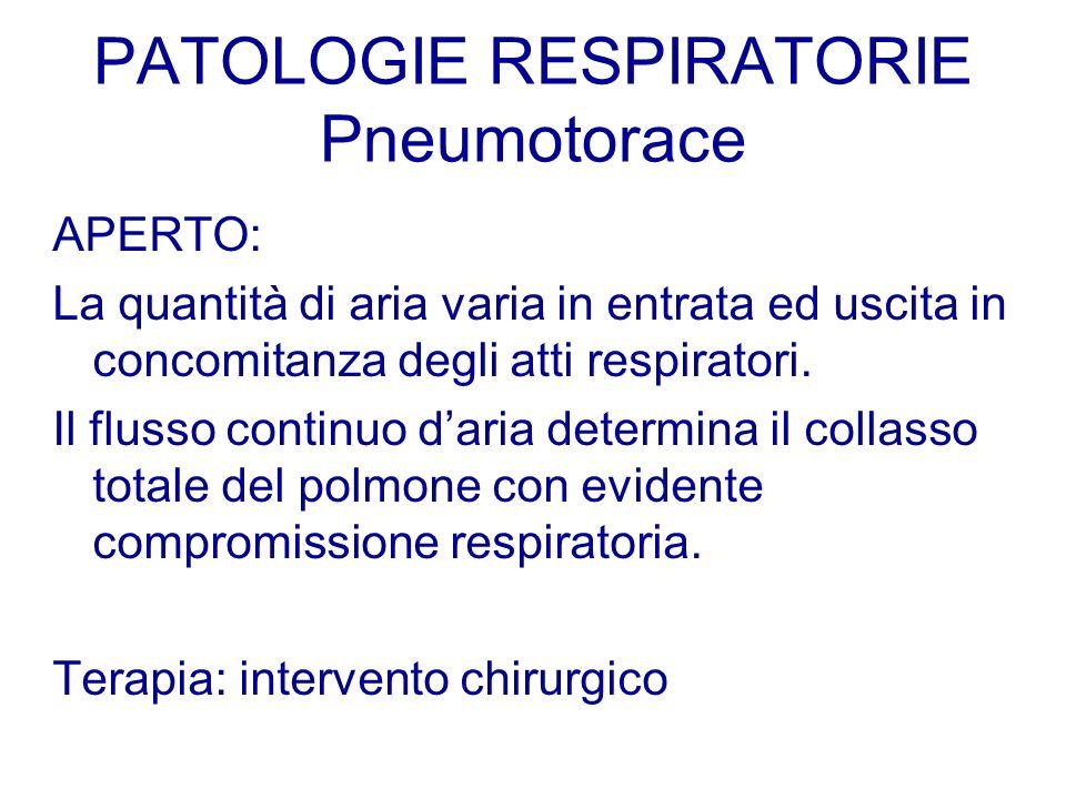 PATOLOGIE RESPIRATORIE Pneumotorace APERTO: La quantità di aria varia in entrata ed uscita in concomitanza degli atti respiratori. Il flusso continuo