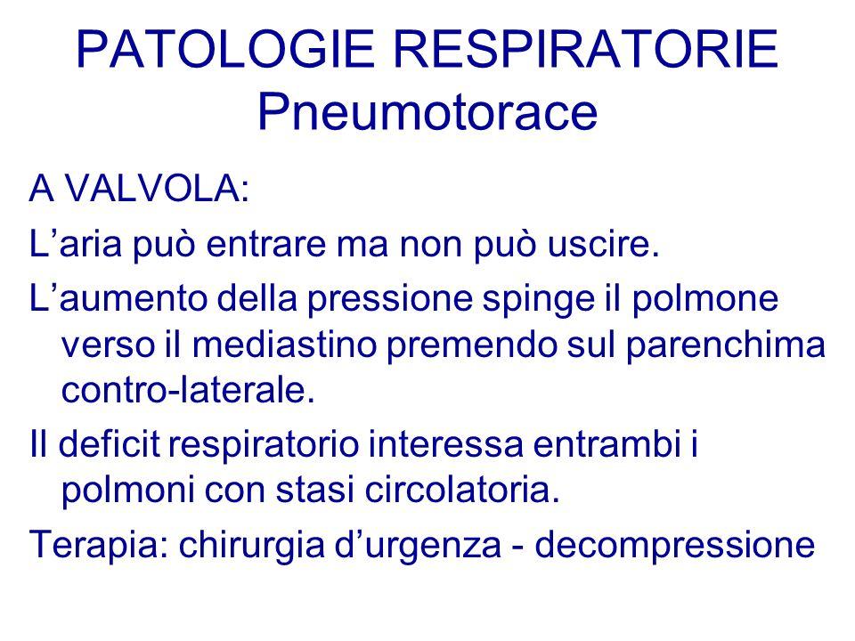 PATOLOGIE RESPIRATORIE Pneumotorace A VALVOLA: Laria può entrare ma non può uscire. Laumento della pressione spinge il polmone verso il mediastino pre