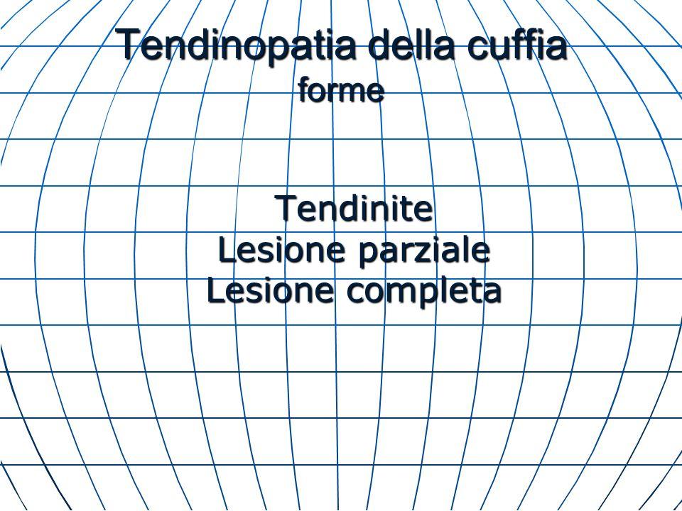 Tendinopatia della cuffia forme Tendinite Lesione parziale Lesione completa