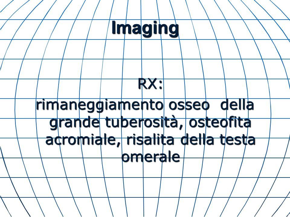 Imaging RX: rimaneggiamento osseo della grande tuberosità, osteofita acromiale, risalita della testa omerale