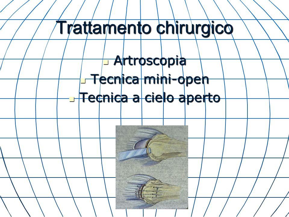 Trattamento chirurgico Artroscopia Artroscopia Tecnica mini-open Tecnica mini-open Tecnica a cielo aperto Tecnica a cielo aperto