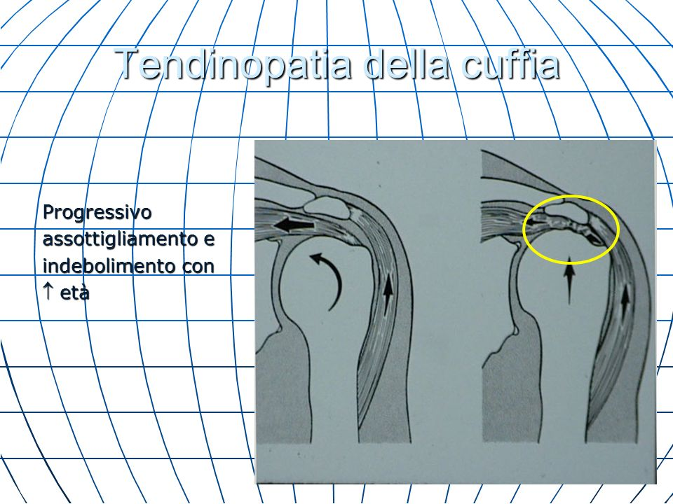 Uso di CPM (mobilizzazione passiva continua) dopo chirurgia