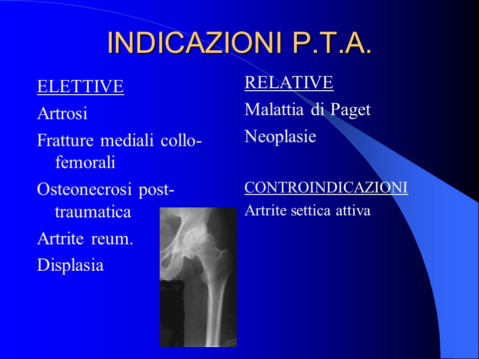 INDICAZIONI P.T.A. ELETTIVE Artrosi Fratture mediali collo- femorali Osteonecrosi post- traumatica Artrite reum. Displasia RELATIVE Malattia di Paget