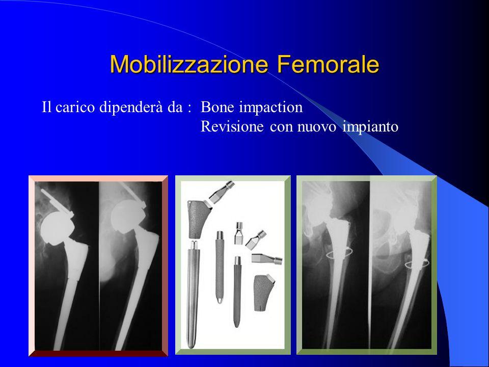 Mobilizzazione Femorale Bone impaction Revisione con nuovo impianto Il carico dipenderà da :