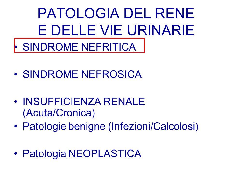 SINDROME NEFRITICA SINDROME NEFROSICA INSUFFICIENZA RENALE (Acuta/Cronica) Patologie benigne (Infezioni/Calcolosi) Patologia NEOPLASTICA
