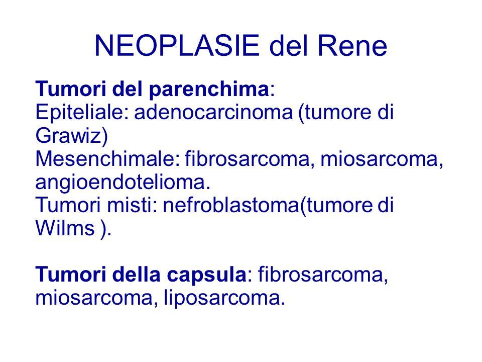 NEOPLASIE del Rene Tumori del parenchima: Epiteliale: adenocarcinoma (tumore di Grawiz) Mesenchimale: fibrosarcoma, miosarcoma, angioendotelioma. Tumo